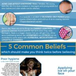 Basic Truths about Acne