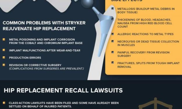 TIps On What To Do About Stryker Hip Replacement Happened