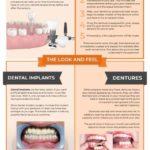 Dental-Implants-vs-Dentures
