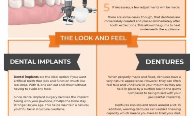 Dental Implants vs Dentures: Which One is Right for You?